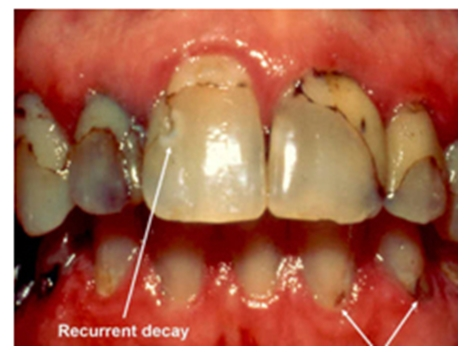 severe caries