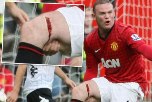 Wayne Rooney's leg injury
