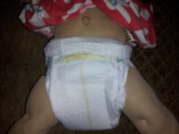 Fold down the front of the newborn diaper if it doesn't have the cut-out for the umbilical cord.