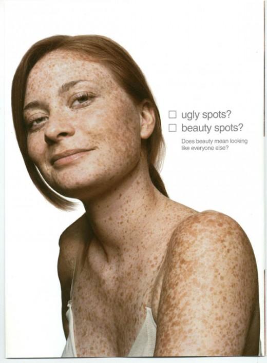 Ugly Spots? Beauty Spots? Does Beauty mean looking like everyone else?