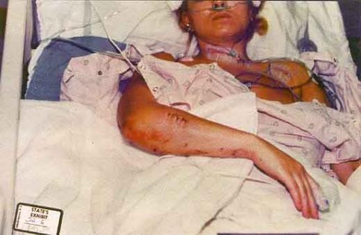 Were Darlie's injuries self-inflicted?