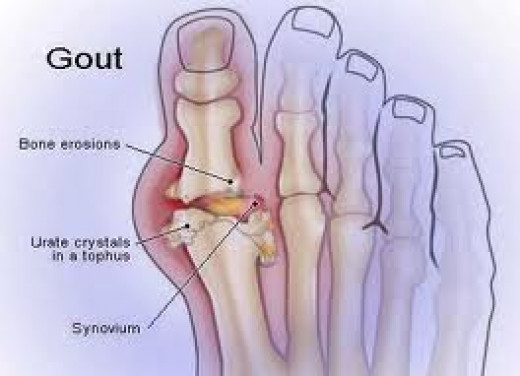 Gout in a toe joint