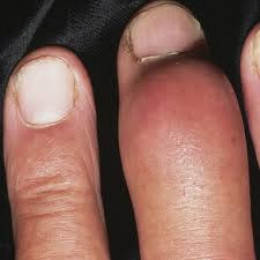 Gout in a finger