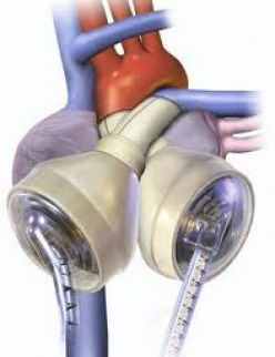 The artificial heart was a major medical breakthrough and it is responsible for saving thousands of lives. It has been improved upon over the years.