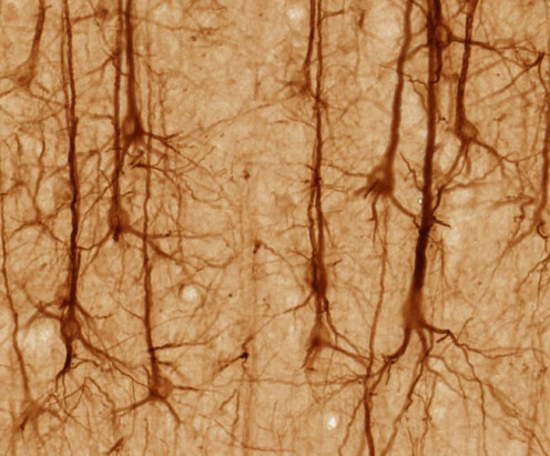 Brain neurons. Notice all the space between them. Some is flesh, most is water.