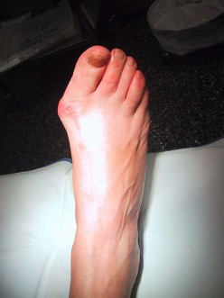 The Way to Treat Bunions