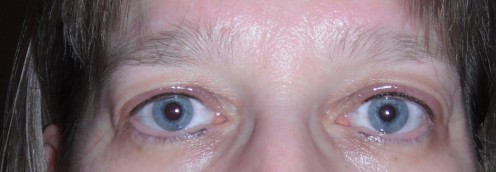 Day of procedure. Upper eyelids are swollen and liner is darker and thicker then end results.