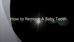 Dental Problems in Kids: How to Deal with Permanent Tooth Behind Baby Tooth