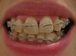 Orthodontic treatment has many advantages