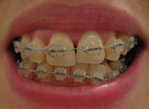 Orthodontic treatment has many advantages
