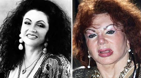 Jackie Stallone before and after photo.