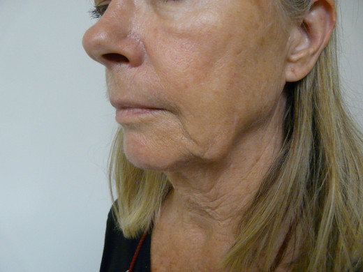 Sagging facial muscles  courtesy of finetouchdermatology.com