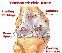 A knee affected by osteoarthritis