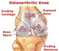 Healthy Diet and Exercise for Osteoarthritis Patients