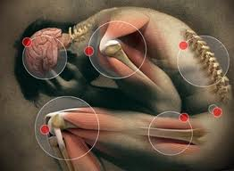 Joints which can be affected
