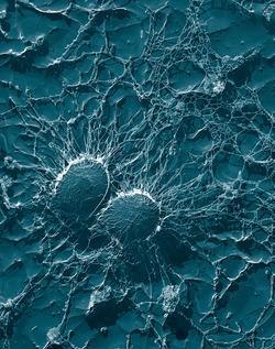 Staphylococcus aureus: Public domain image courtesy Wikimedia.