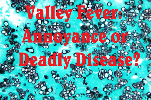 Valley fever is poorly recognized even by doctors.
