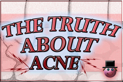 The truth about acne can be hard to find!