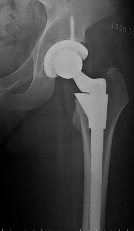 A hip replacement can be a new lease of life for someone who is in constant pain