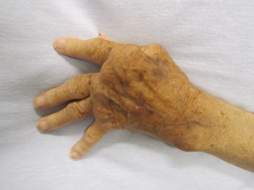 Joints of the hand affected by rheumatoid arthritis.