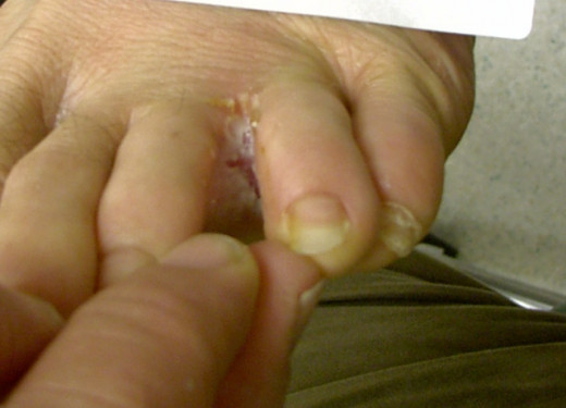 Fungus can infect many areas of the body and one of the most common is the feet - known as 'athlete's foot'.