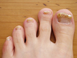 Fungi can even infect the hard surface of both toe nails and finger nails.