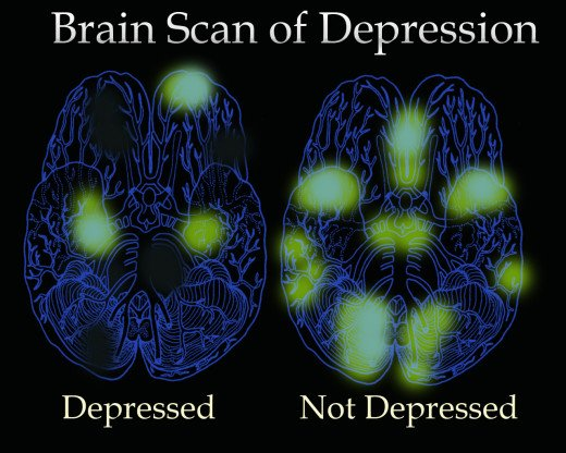 A simulation of a Brain Scan on Depression