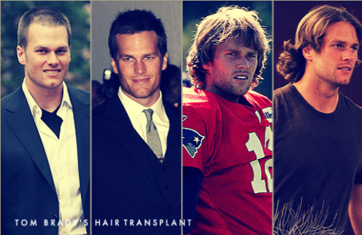 Tom Brady was rumored that he had minimally-invasive hair transplant techniques like NeoGraft FUE and careful hairline artistry.