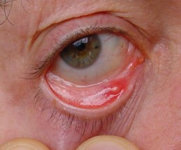 The inner lid of the eye can often reveal if a person is anaemic.