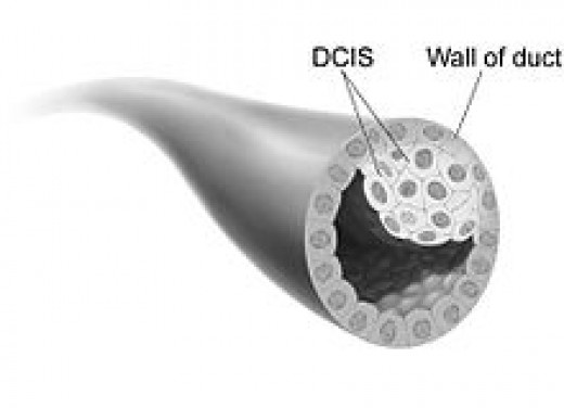 "Shown is a drawing of a breast duct containing ductal carcinoma in situ. ""In situ"" means ""in place"" and refers to the fact that the cancer has not moved out of the duct and into any surrounding tissue."