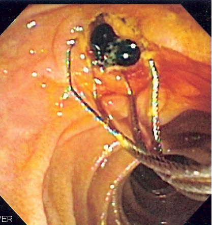 Duodenoscopy image of two pigment stones extracted from common bile duct
