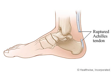 Simply cutting the Achilles tendon makes a human unable to use their leg