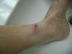 8/25/12.After wound care & starting Cipro.