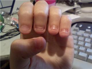 Extreme nail biting is a bad habit that this Hub's author conquered many years ago using this Hub's advice. Something that helped a lot was always keeping nails painted, until the desire to bite/chew them went away within a month's time