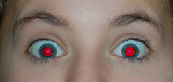 How to Remove Red Eye in Photographs