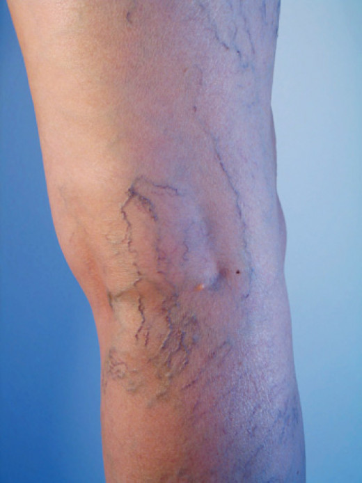 Treatment of spider veins is considered cosmetic & is not covered by Medical.