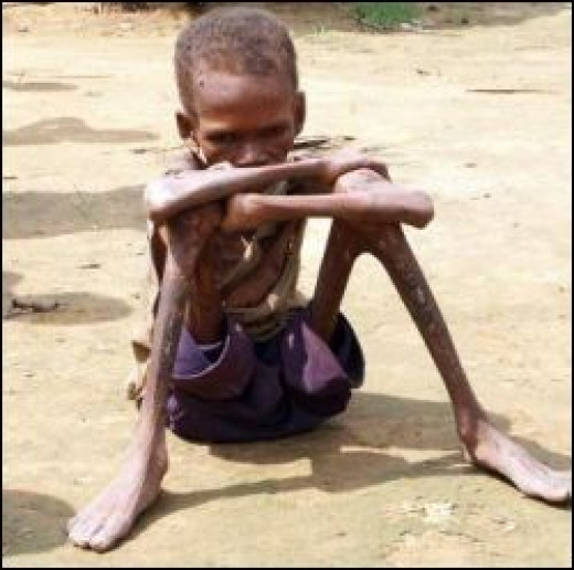 Even when there is plenty of food to go around, many hundreds of millions, mostly children and babies are just too poor to survive.