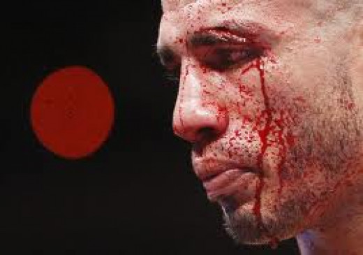 Cotto Could Dish It Out As Well As Take It and he has proved it throughout his illustrious ring career. Here he is seen bleeding profusely against Antonio Mara-cheato.