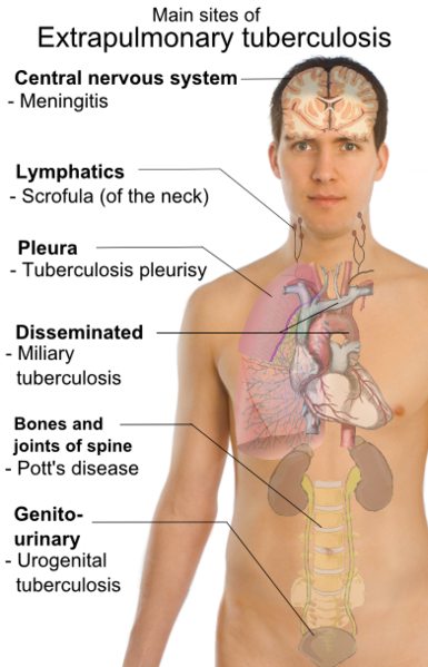 Tuberculosis can affect many areas of the body