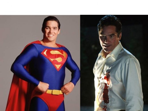 Dean Cain as Superman (Lois and Clark) and Dr. Curtis Knox (Smallville)