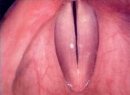 The larynx - vocal folds (cords, bands)