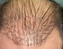 Do you know anyone who has had a hair transplant or hair plugs done and honestly how did they look?