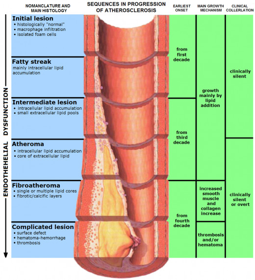 Stages of Atherosclerosis