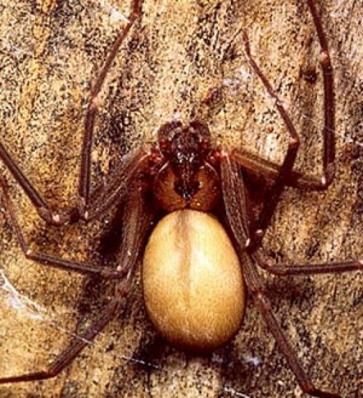 brown recluse spider bite pictures. Brown Recluse Spider Bite To A