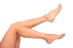 How to prevent varicose veins.