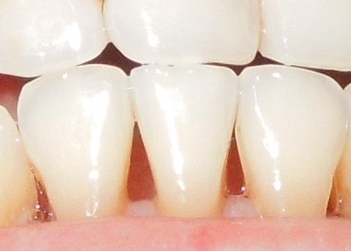 Bone lost in teeth after braces resulting big gaps between teeth.