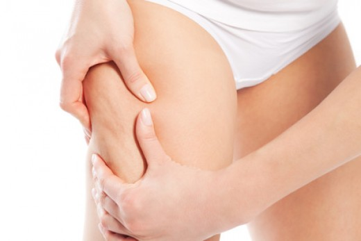 How can you decrease the visibility of cellulite?
