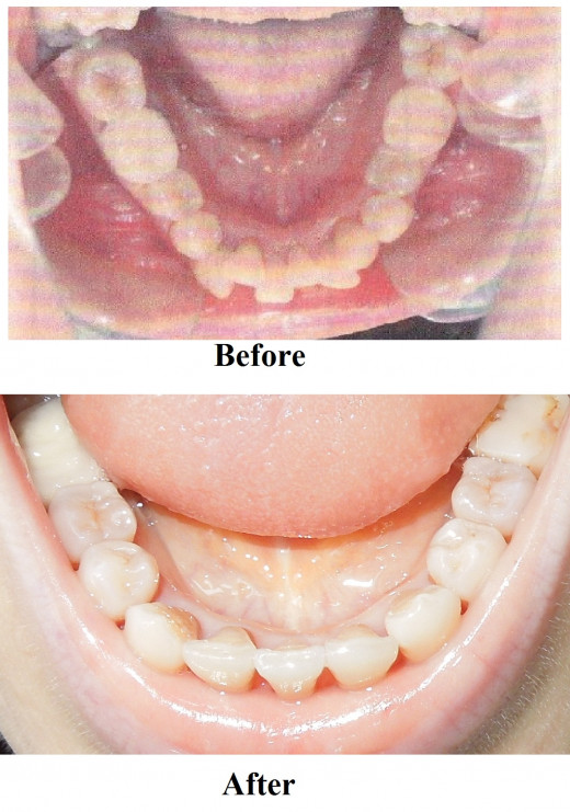 Overcrowded Teeth before and after braces