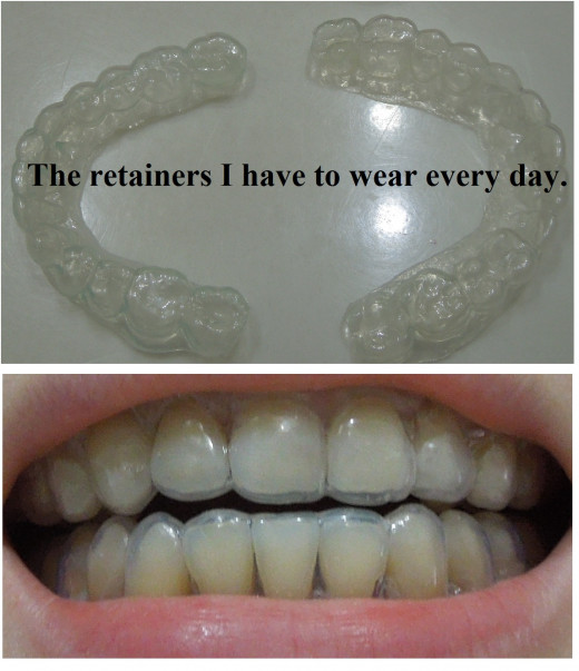 Wearing clear retainers after braces.
