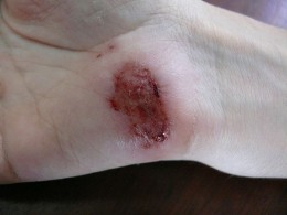 Wounds that breach the skin's protective barrier can lead to bacterial infections.